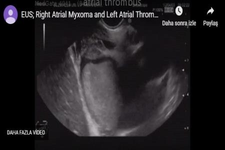 19 ys male. dysphagia, right atrial myxoma
